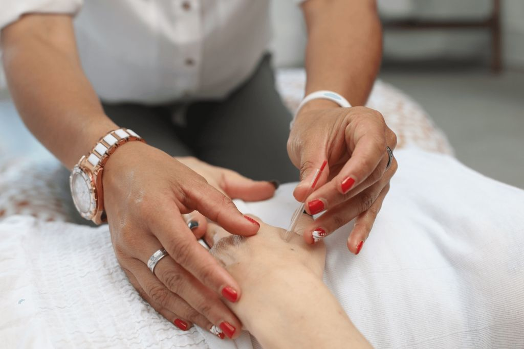 Acupuncture in a hand